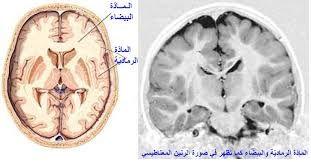 Resultat De Recherche D Images Pour فيديو لساحاث المخ