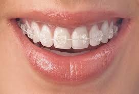 Best Orthodontist Near Me Teeth Braces Clear Braces Clear Braces Teeth