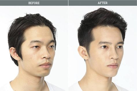 Elegance Plastic Surgery Clinic Believe In Ethics And Behavior Not Only The Surgeon But The Associated Plastic Surgery Korean Plastic Surgery Cosmetic Surgery