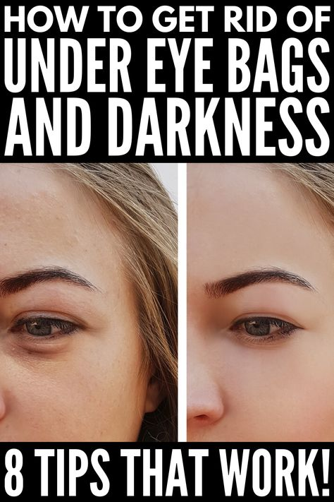 If you're feeling tired and run down, you may also have noticed dark circles under your eyes. A classic sign of fatigue, dark under eye circles can look purple or blue to dark brown or black, dependin Dark Circles Makeup, Dark Circles Under Eyes, Dark Under Eye, Dark Rings Under Eyes, Remove Dark Eye Circles, Eye Cream For Dark Circles, Concealer For Dark Circles, Eye Treatment, Beauty Tips