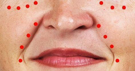 vörös folt az ember arcán