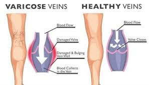 Pin On Best Vein Doctor In New Jersey