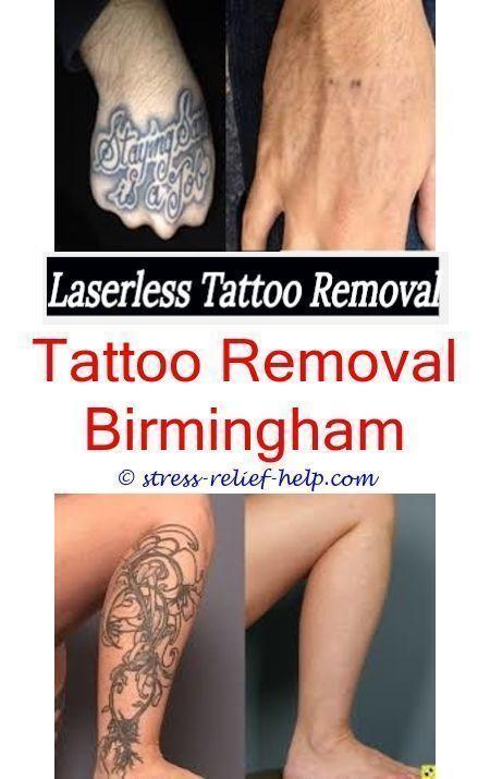 Tattoo Removal Walmart : tattoo, removal, walmart, Tattoo, Removal, Procedure, Remove, Henna, Eyebrows, Walmart, Removal.eas…, Removal,, Henna,