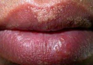symptoms of sunburn on lips