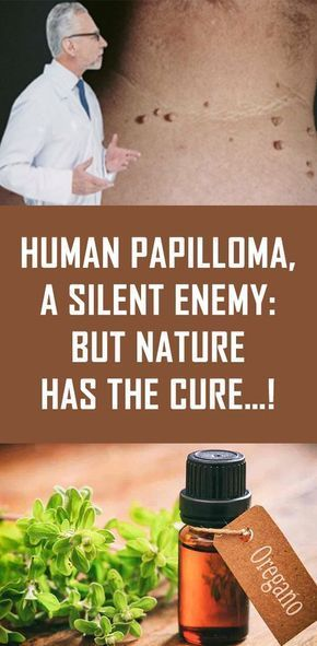 List of Pinterest hpv cure natural treatments home remedies
