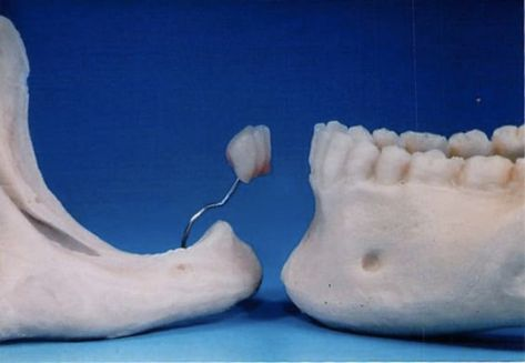 Bone loss three years after tooth loss. Implants can help prevent bone loss. #dentistry