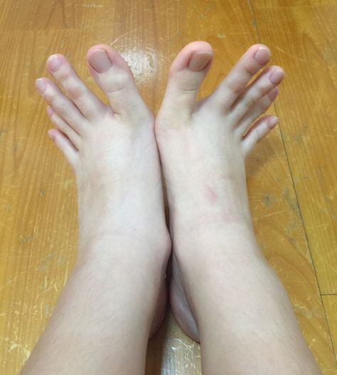 Aaaahhhhh!!! I cannot deal with these toes!