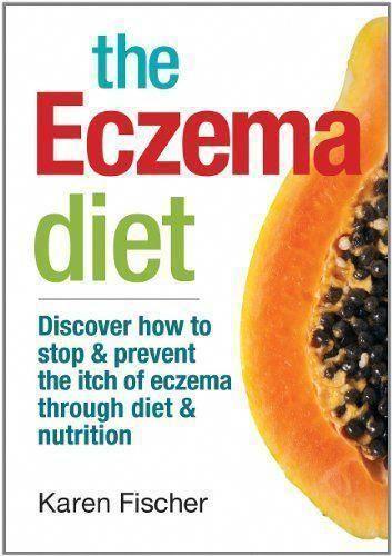 Psoriasistreatmentintamilnadu Cellulitetreatmentomaha Eczema Diet Diet And Nutrition Psoriasis Diet