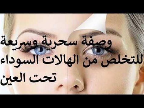 وصفة سحرية وسريعة للتخلص من الهالات السوداء دكتور عماد ميزاب Youtube Sleep Eye Mask Mask Beauty