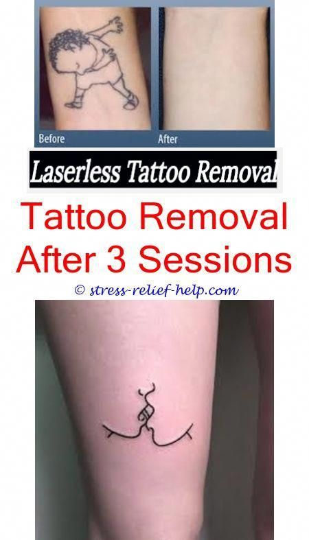 Will Tattoo Removal Get Better Tattoo Removal Green Ink Scarring After Laser Tattoo Removal Tattoo Re Tattoo Removal Cost Tattoo Removal Tattoo Removal Cream