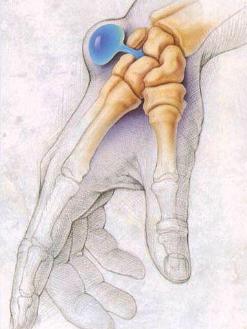 Шишка на руке называется гигромойили синовиальной кистой. Гигрома ...