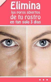 Remedios para los poros abiertos Descubres cuales son los Remedios para los poros abierto. En la actualidad existen muchos problemas comunes en la piel y, #NaturalBeautyTips