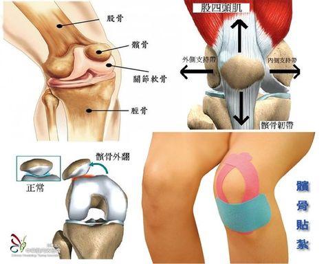 膝關節及其保養 Tc S Life Journey 隨意窩 Xuite日誌 Exercise