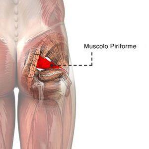 Cos'è la falsa sciatica o sindrome del piriforme?