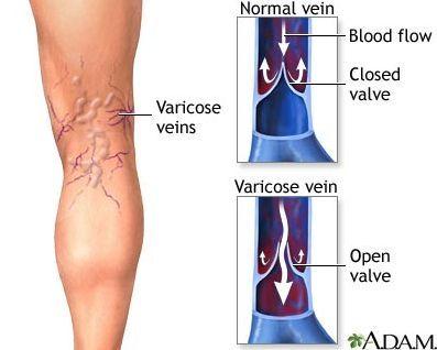 dor nas veias das pernas visíveis