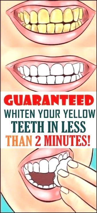 Pin On Whiten Teeth
