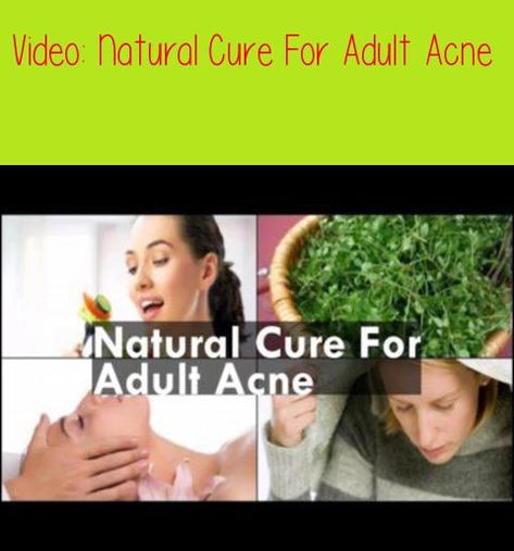 Remarkable, rather natural cure for adult acne consider