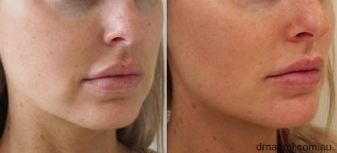 List of dermal fillers cheeks before after pictures and