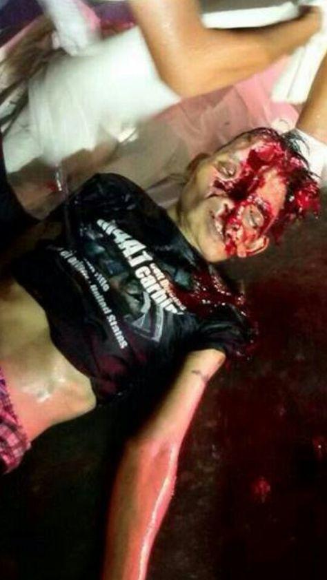 Motorcycle accident split open skull.