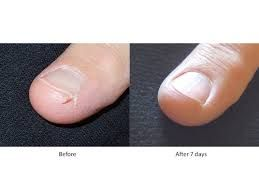 Natural Home Remedies For Cracked Fingertips Cracked Fingertips Cracked Fingers Fingernail Remedies
