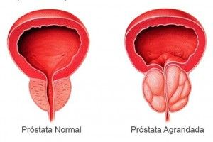 prostatitis benigna medicinas alternativas naturales