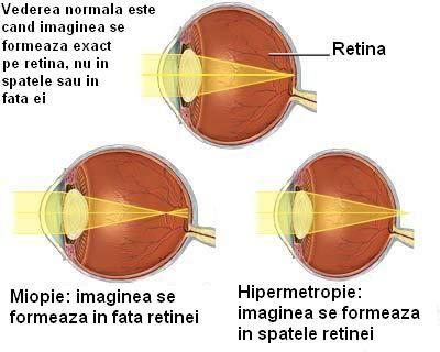 hipermetropie pe an 4 declarațiile oftalmologilor