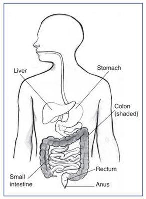 Ulcerative Colitis ~ An inflammatory bowel disease