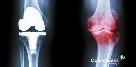 14 Ideas De Protesis Rodilla Rodillas Cirugía De Rodilla Ligamentos De La Rodilla
