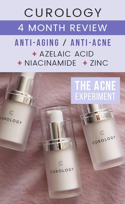 Curology Review The Acne Experiment Acne Dermatitis Treatment Skin Care Acne