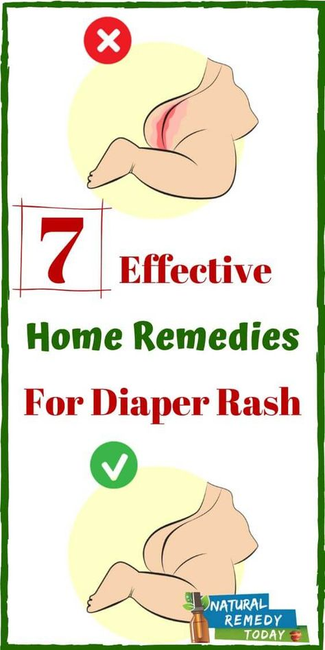 7 Effective Home Remedies For Diaper Rash Free Natural