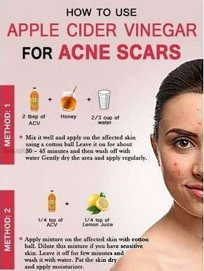 Get rid of your embarrasing acne with these tips