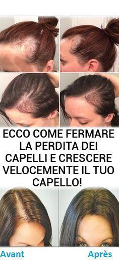 bicarbonato di sodio capelli