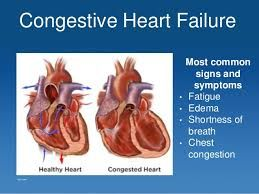 How To Reverse Congestive Heart Failure Naturally | Health