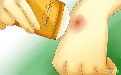 Tu desodorante también funciona para calmar la picazón por picaduras de mosquito.   41 trucos ingeniosos para acampar que desearás haber sabido antes