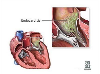 التهاب الشغاف Endocarditis هو التهاب في الشغاف أو صمامات القلب الشغاف هو الغشاء المبطن للأسطح الداخلية للقلب يمكن أن يحدث التهاب الشغاف Blog Health