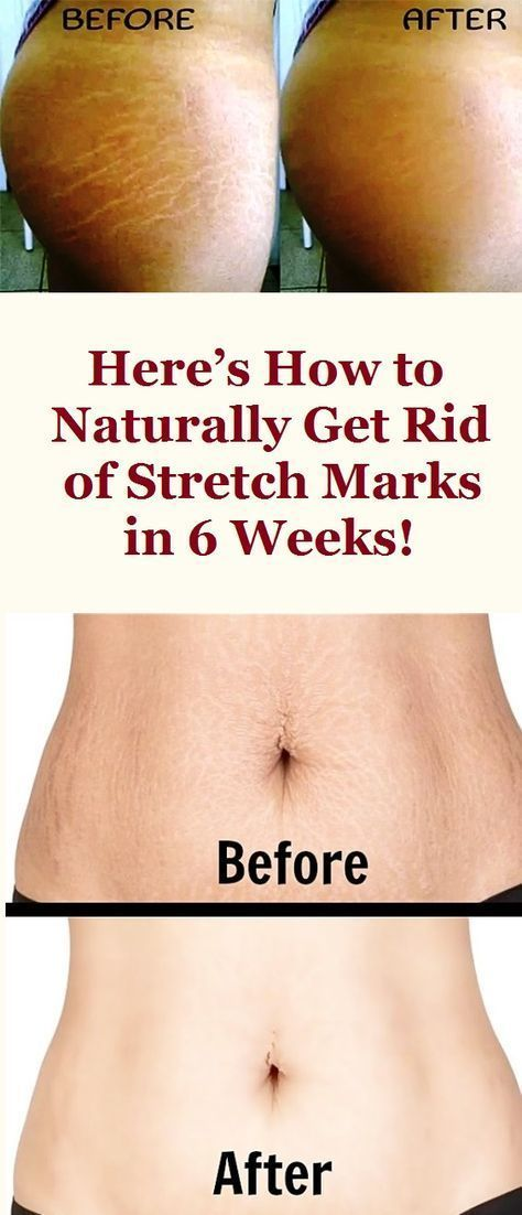 Stretch Marks Removal Stretch Marks Removal Before And After