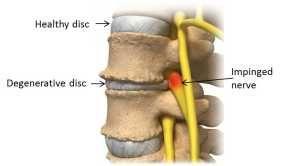Turmeric and Degenerative Disc Disease