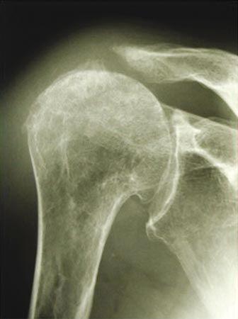 Maîtrise Orthopédique » Articles » Arthrose par rupture massive de la coiffe des rotateurs