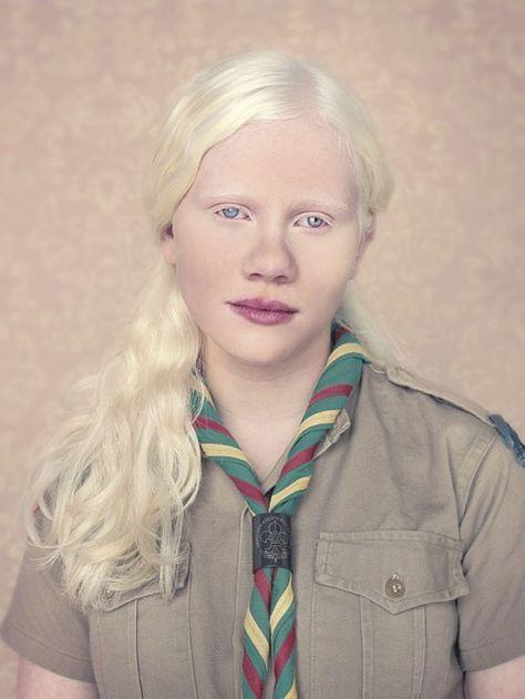 albino mensch