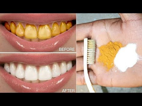 ‪Magical Teeth Whitening home Remedy, Get whiten Teeth at home in 3 minutes‬‏ - YouTube