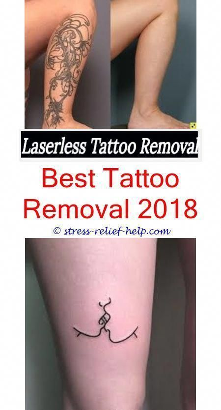Laser Tattoo Removal Before And After Reddit - Best Tattoo ...