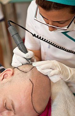 How does Scalp Micropigmentation work? What machine is used for Scalp…