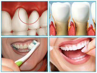 العلاج بالنباتات علاج تقرحات الفم والأسنان بالطب البديل Lipstick Beauty