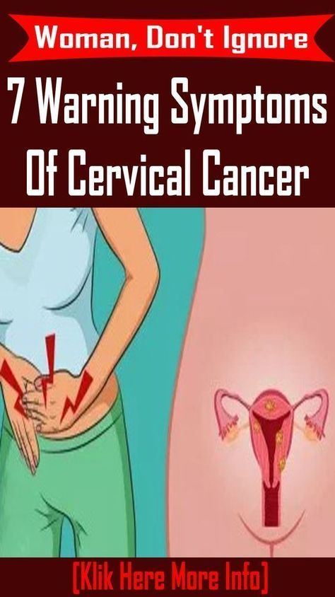 7 things every woman should know about ovarian cancer THOUSANDS of women are at risk of dying from ovarian cancer – because they're diagnosed too late. A postcode lottery means a fifth of patients are found to have the disease in the advanced stages, a charity warned today. #cancer #health #woman #ovarian_cancer #Anal_Cancer
