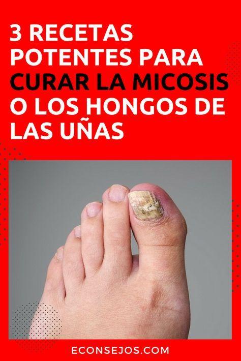 que es micosis u hongos