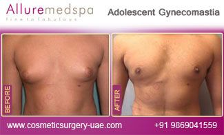 Pin On Before And After Cosmetic Surgery Uae