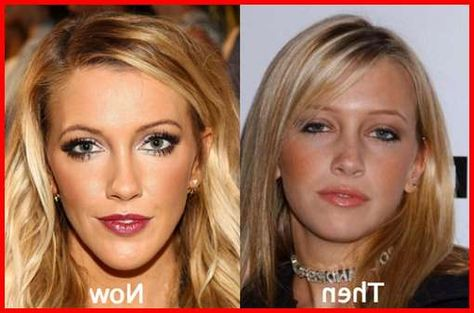 Katie Cassidy Plastic Surgery Before \ After Celebrity Plastic - plastic surgery consultant sample resume