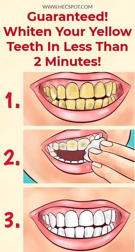 Whiten Your Yellow Teeth In Less Than 2 Minutes! Here is the recipe on how to whiten your yellow teeth in less than 2 minutes.Here is the recipe on how to whiten your yellow teeth in less than 2 minutes. Teeth Health, Healthy Teeth, Healthy Nails, Healthy Skin Care, Healthy Life, Beauty Tips For Hair, Beauty Hacks, Beauty Secrets, Beauty Tutorials