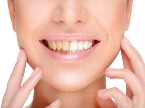ed3eef0251f63e25eeb91295480e65a9 - How To Get Rid Of Black Stains On Your Teeth