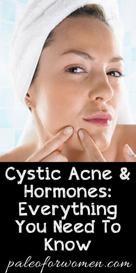 Cystic Acne And Hormones Everything You Need To Know